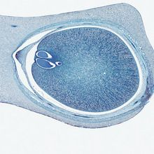Zamia Young Ovule, l.s., 12 µm Microscope Slide