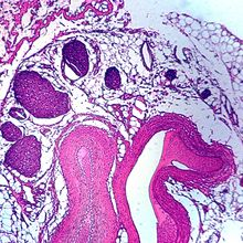 Artery, cross section, Microscope Slide