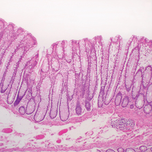 Mammal Colon, Duodenum, Esophagus Epithelium, Intestine Composite, Microscope Slides