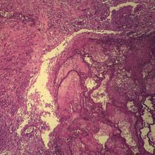 Human Metastatic Carcinoma to Lung, sec. 7 µm H&E Microscope Slide