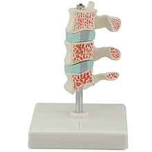 Altay® Human Advanced Osteoporosis Model