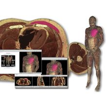 VH Dissector Anatomy Software, Lifetime Personal License
