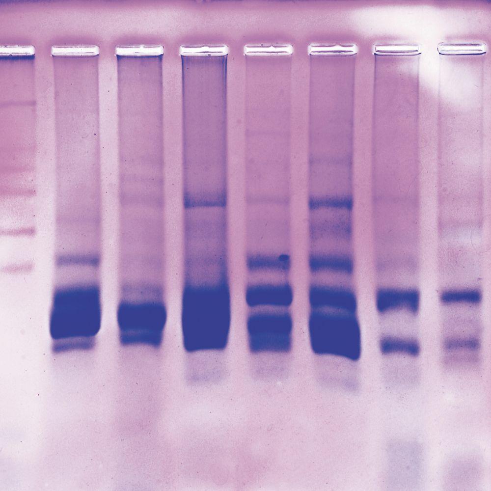 fish protein fingerprinting on polyacrylamide gels kit with rh carolina com Ampro Protein Gel Ampro Protein Gel