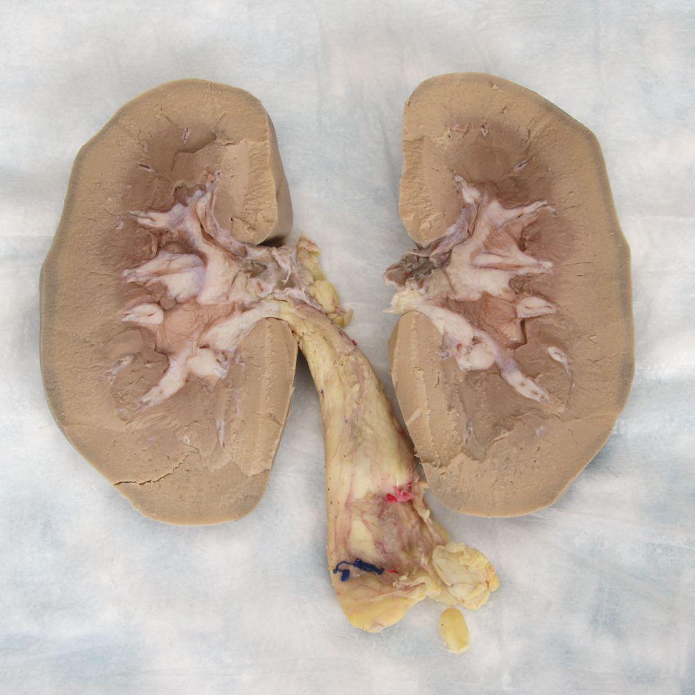Carolinas Perfect Solution Pig Kidney Plain Pail Carolina