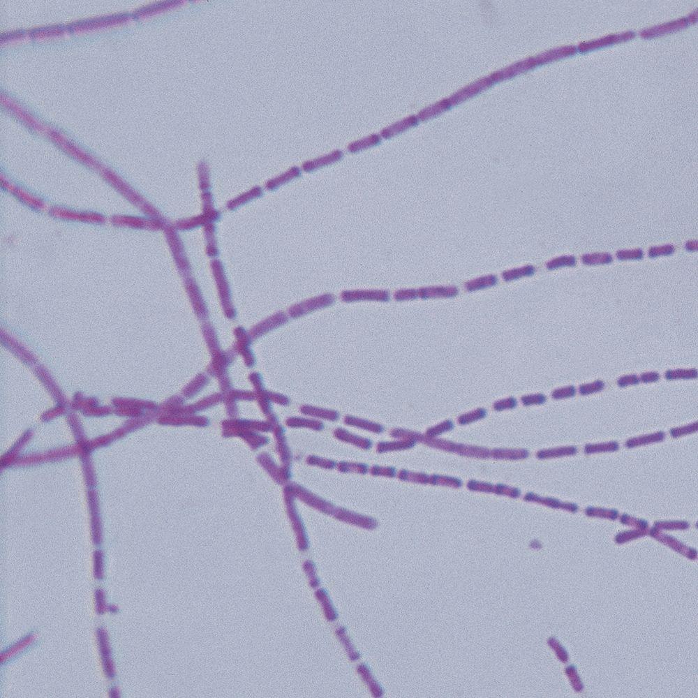 B Anthracis Bacillus anthracis Mic...