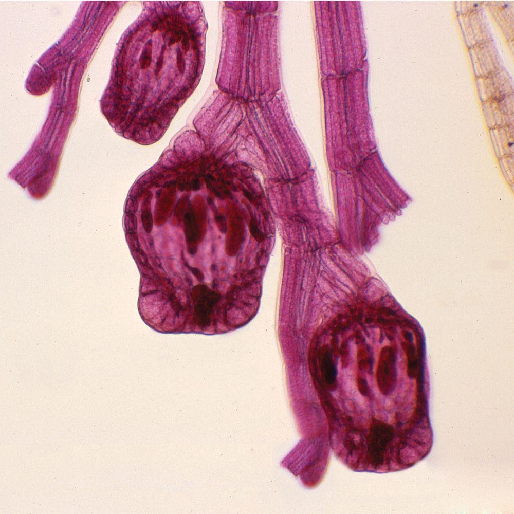 Red Algae Microscope Slides (Polysiphonia, Porphyra ...  Red Algae Micro...