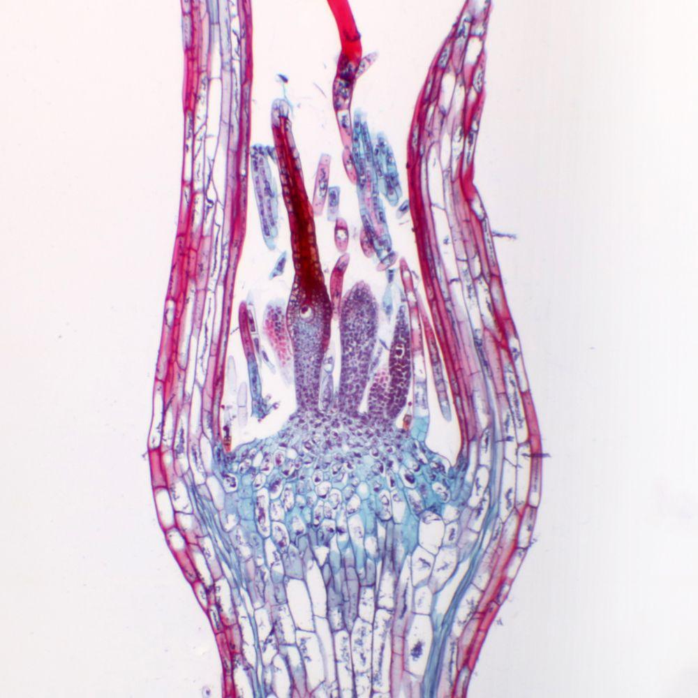 Moss Archegonial Head Ls 12 M Microscope Slide Carolina
