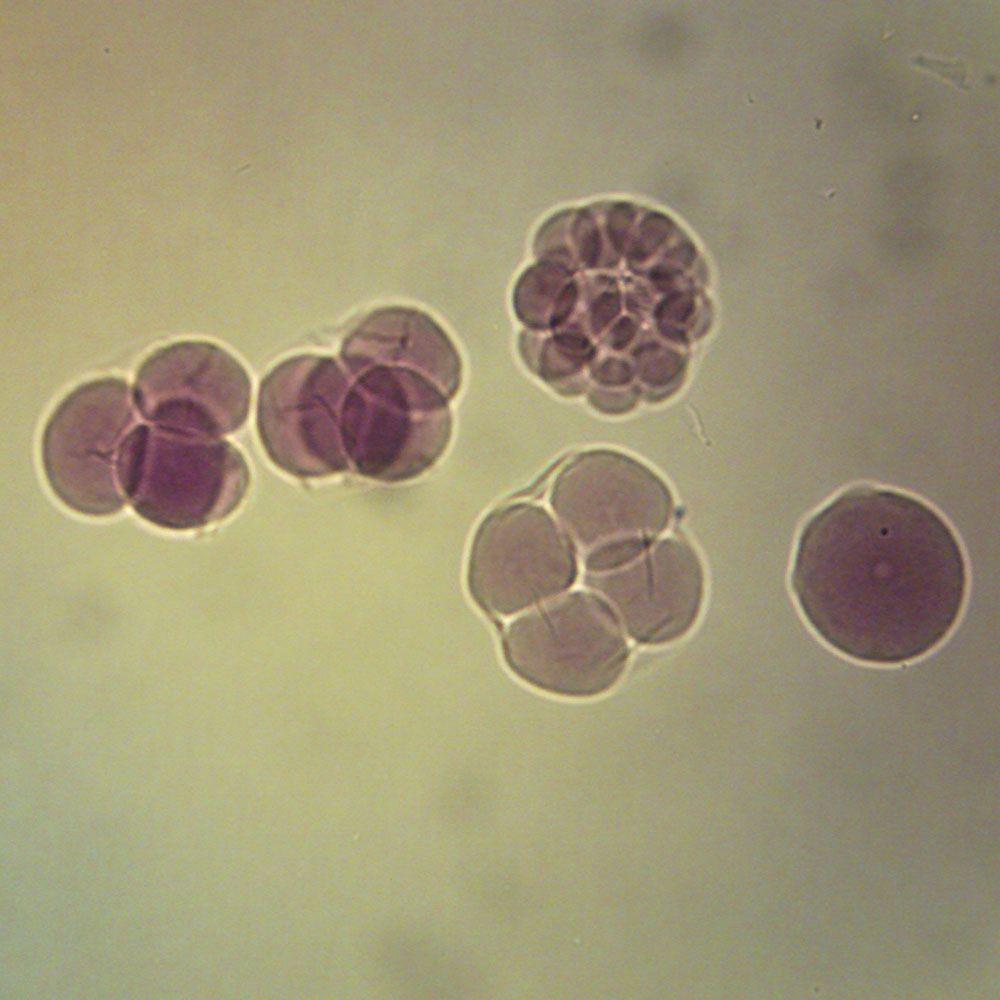 Ophiures Under a Microscope, Similar To Asteroidea (Sea ...  |Microscopic Image Sea Star