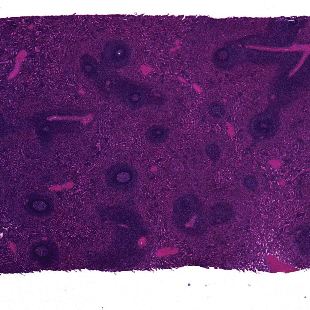 Human Spleen sec. 7 µm H&E stain Microscope Slide ...