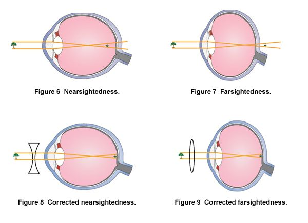 Optics of the human eye carolina eye can interfere with the eyes ability to focus light correctly on the retina corrective lenses can sometimes help people with vision problems see ccuart Choice Image
