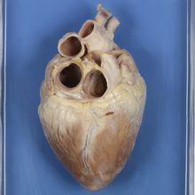 Preserved Demonstration Pig Heart