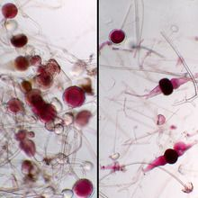 Rhizopus Sporangia and Zygotes Combination, w.m ... Rhizopus Sporangia Images