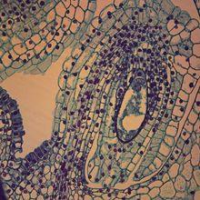 Mature Female Gametophyte 95