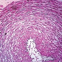Mucous Tissue, cross section, Microscope Slide