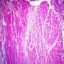 Myocardial Infarction, Sec. Microscope Slide