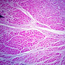 Myocardial Infarction, Microscope Slide