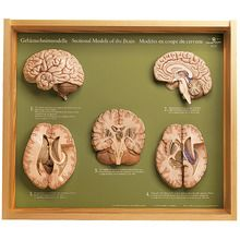 Somso® 5 Section Models of the Human Brain
