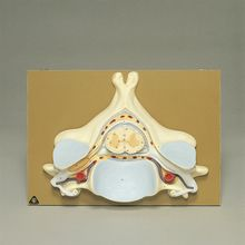 Somso Human Spinal Cord Section Model