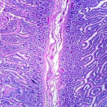 Duodenum, Lower CS., Microscope Slide