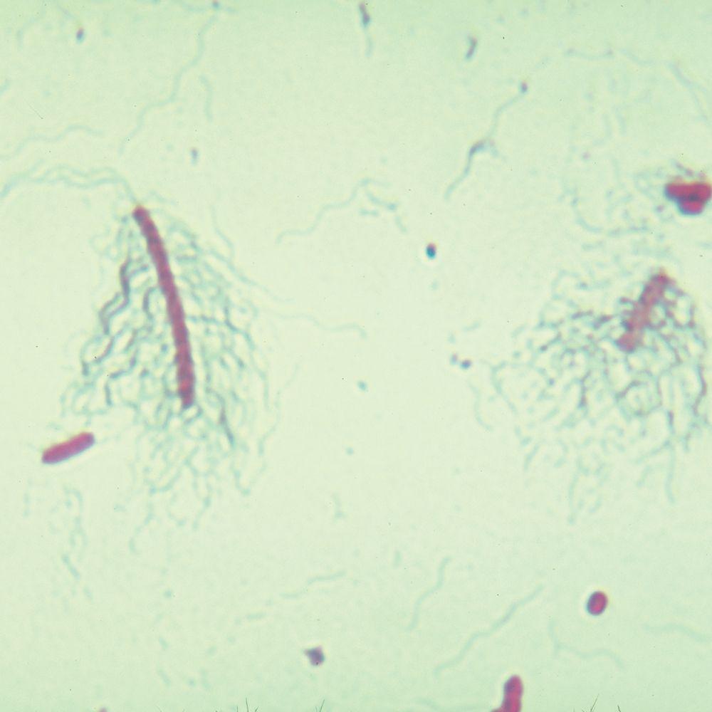 Unknown is proteus vulgaris