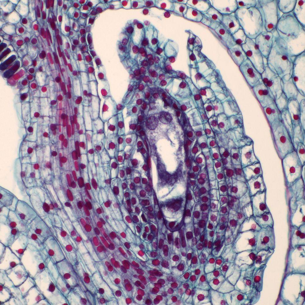 Mature Female Gametophyte 24