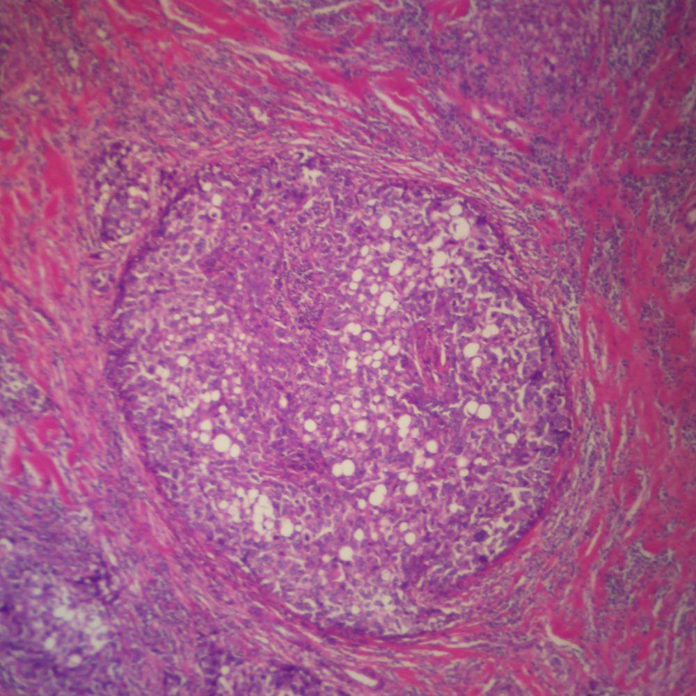 Human Digestive System Pathology Microscope Slides